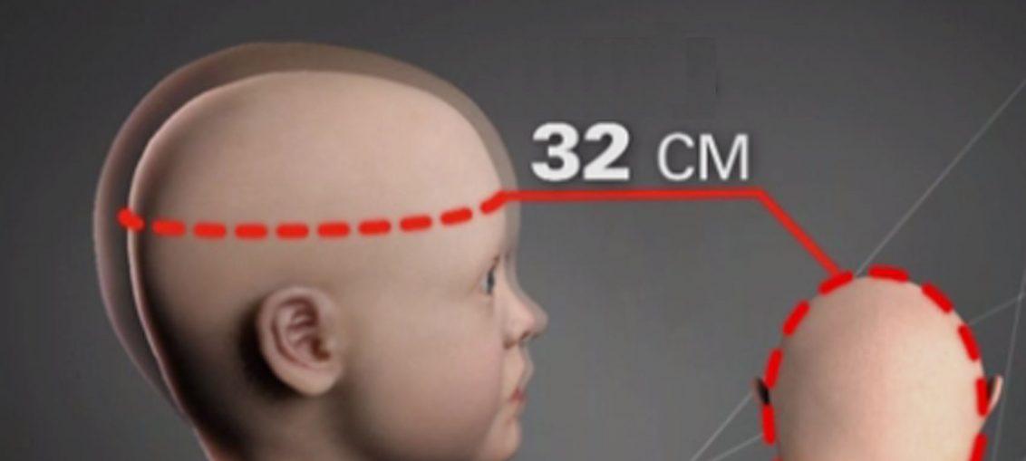 Microcefalia: Saiba Mais Sobre A Doença