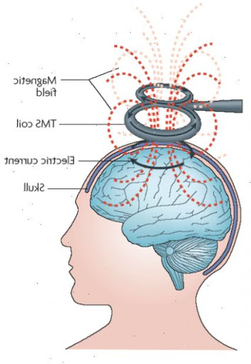 Estimulação Magnética Transcraniana - Regenerati