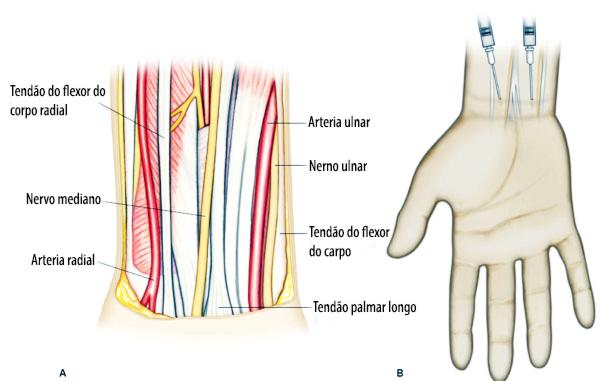 Bloqueio de nervos periféricos