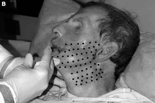 Toxina Botulínica Terapêutica