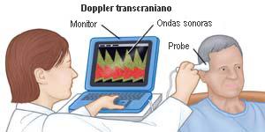 Ultrassom-Doppler Transcraniano