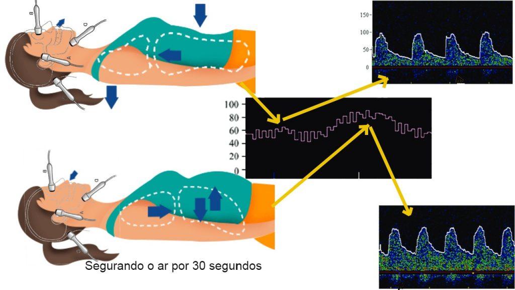 Doppler Transcraniano Teste de Reserva Vascular