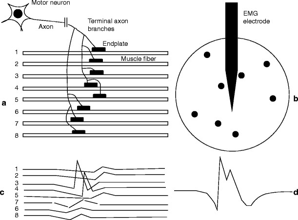Eletroneuromiografia (ENMG)