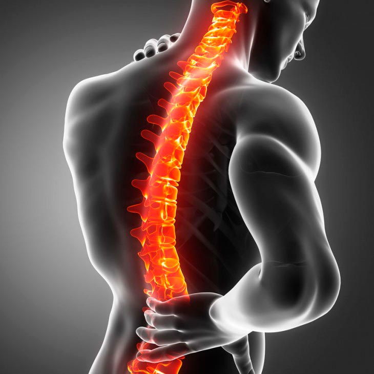 Cirurgia Para Dor Neuropática – Eletrodo Medular