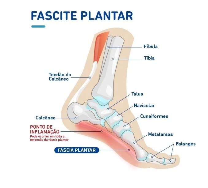 Principais causas de dores no pé