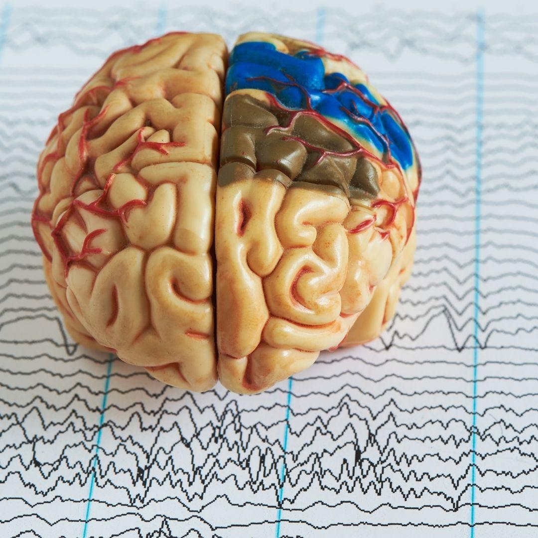 Epilepsia Análise