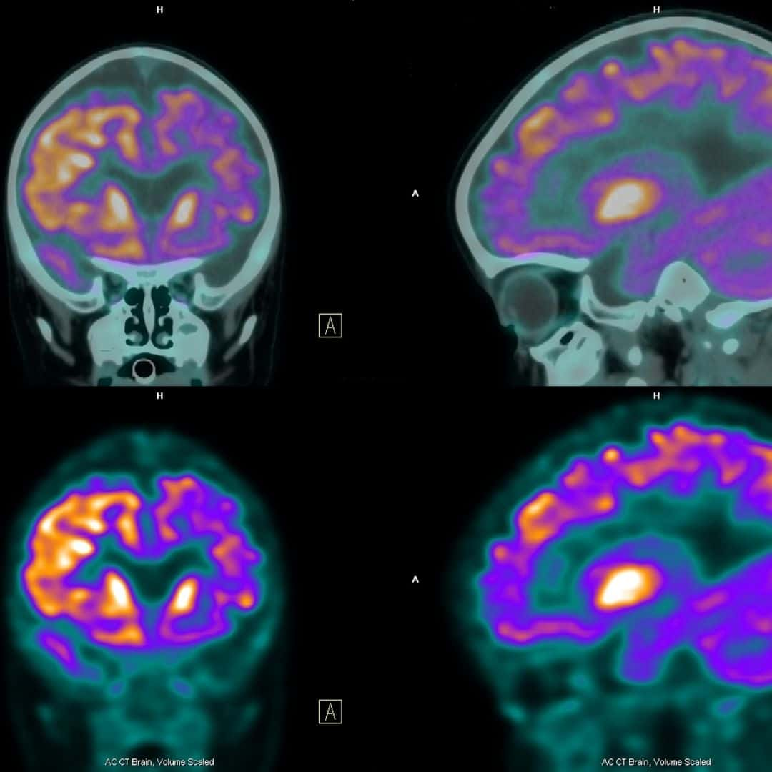 Tratamento da Epilepsia