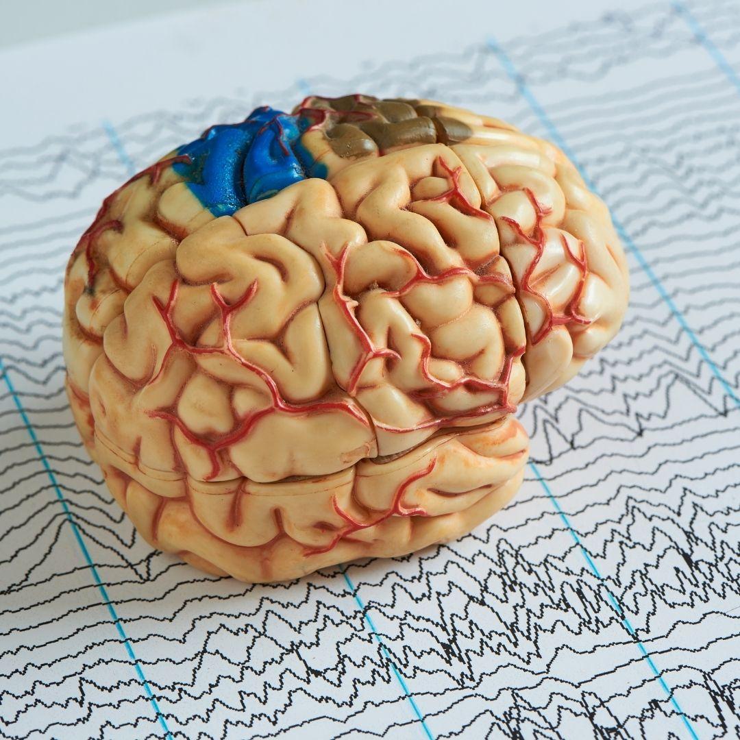 Epilepsia Foco