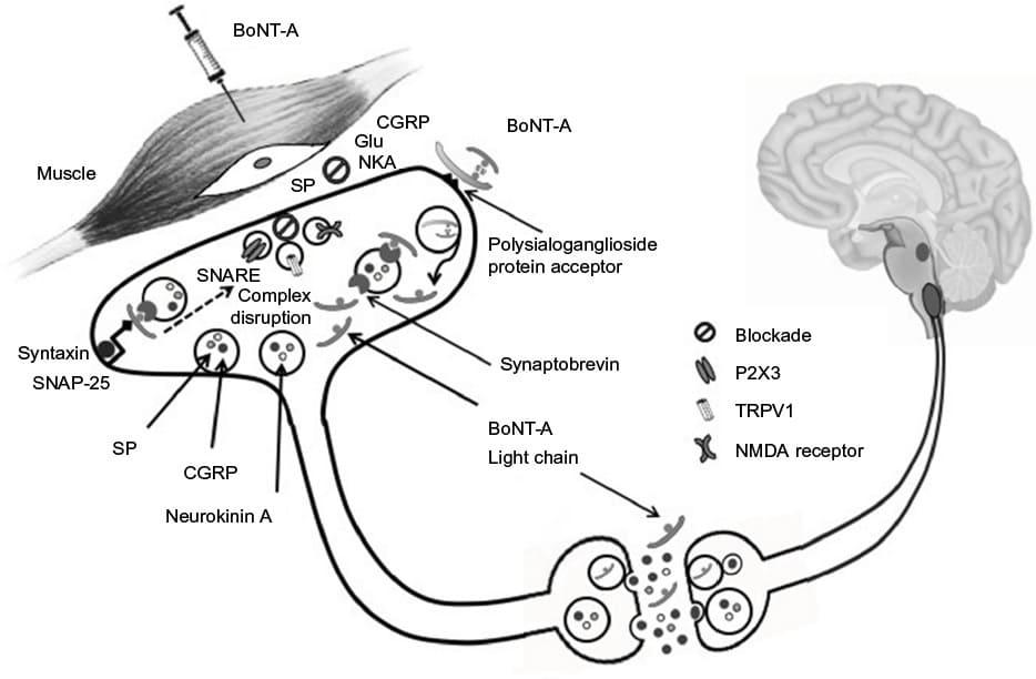 como a toxina botulínica funciona