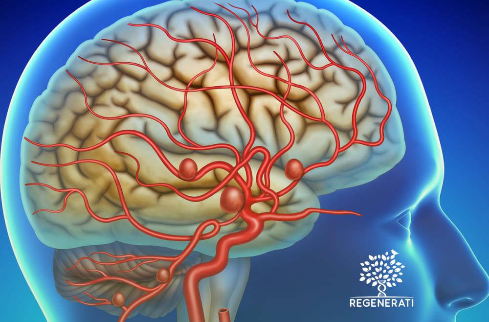 Localização e Causas de um Aneurisma Cerebral