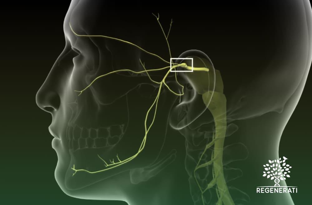 Tratamento Cirúrgico da Neuralgia do Trigêmeo