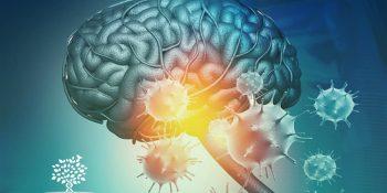 Sequelas da Covid – Sequelas Neurológicas da COVID-19